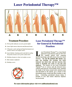 laser-periodontal-therapy