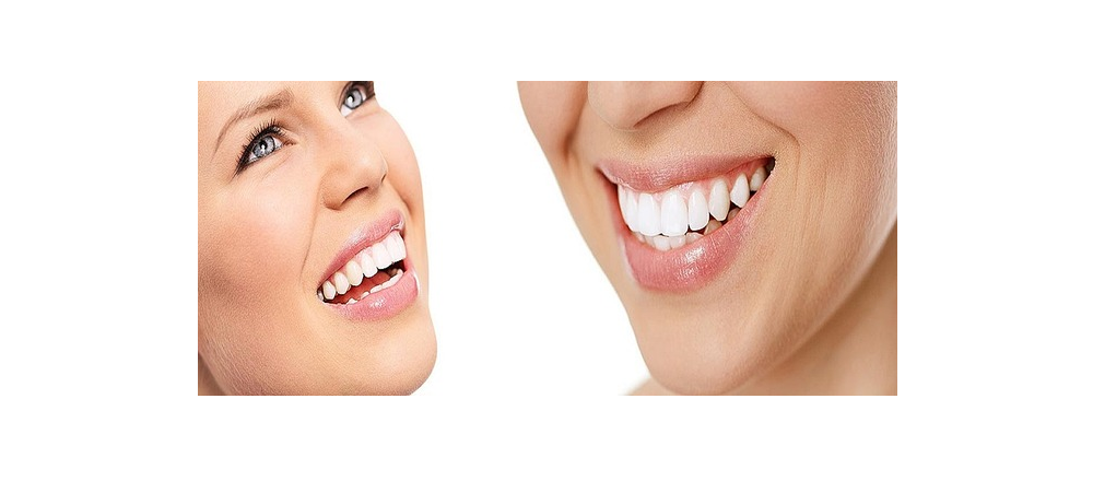 Dental Implants For A Great Smile