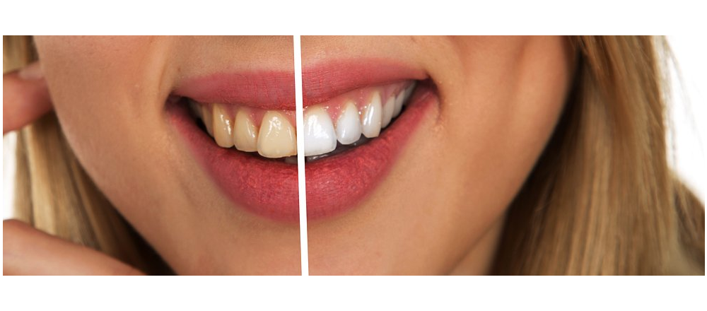 Veneers Clearwater Family Dental